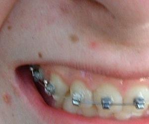 La importancia de la higiene oral en tratamientos de ortodoncia fija
