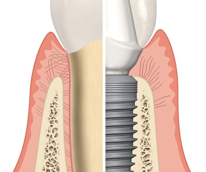 implante dental bilbao