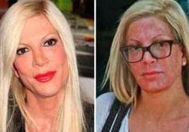 Dermoabrasión: Estética facial