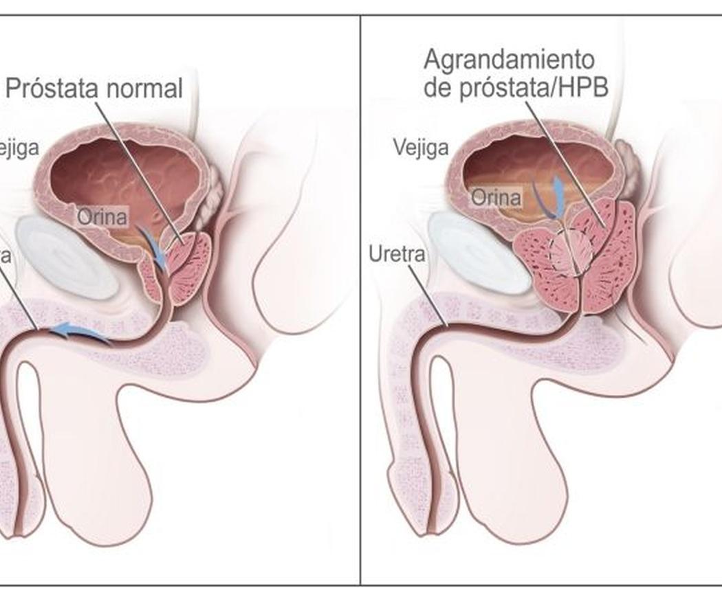 Qué es el carcinoma prostático y sus principales causas