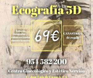 Ecografía 5D en Sevilla