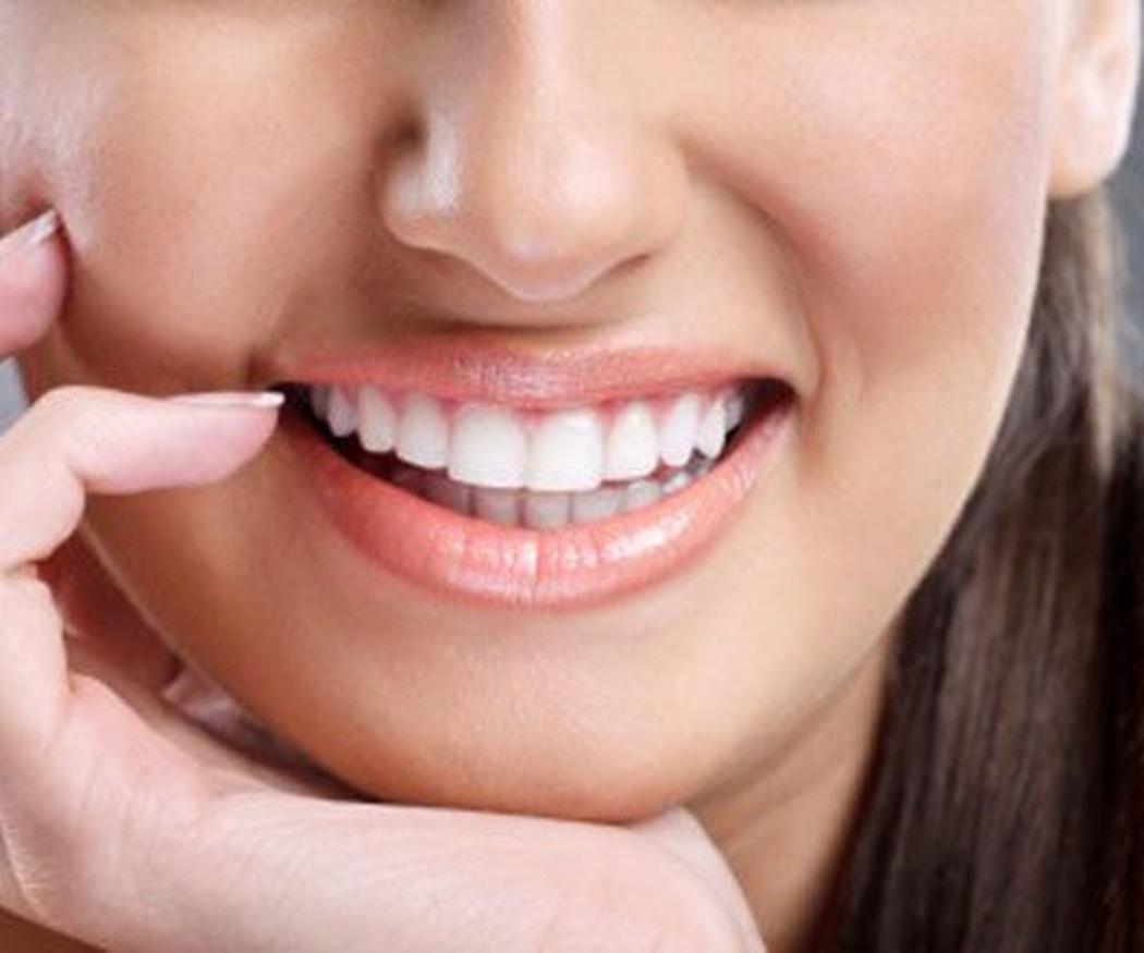 5 preguntas sobre la ortodoncia invisible