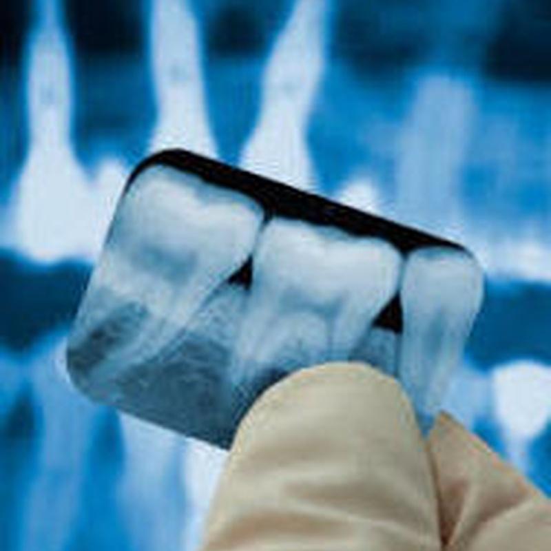 Rx dental: Tratamientos de Clínica Dental Tucán