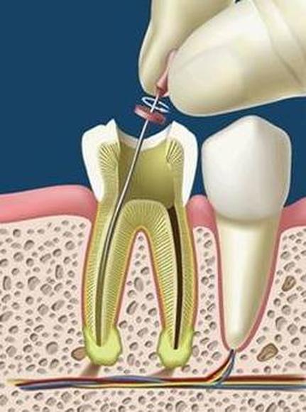 Endodoncia: Servicios de Clínica Dental El Carmen