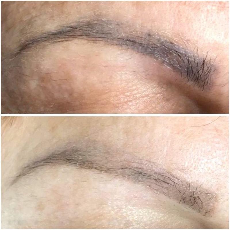 Eliminación de Micropigamentación de cejas, ojos y labios: Servicios de Bodybrite Majadahonda