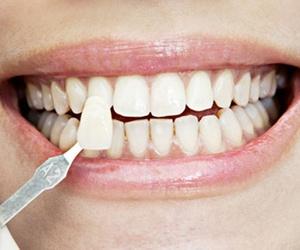Los cuidados que requieren los implantes dentales