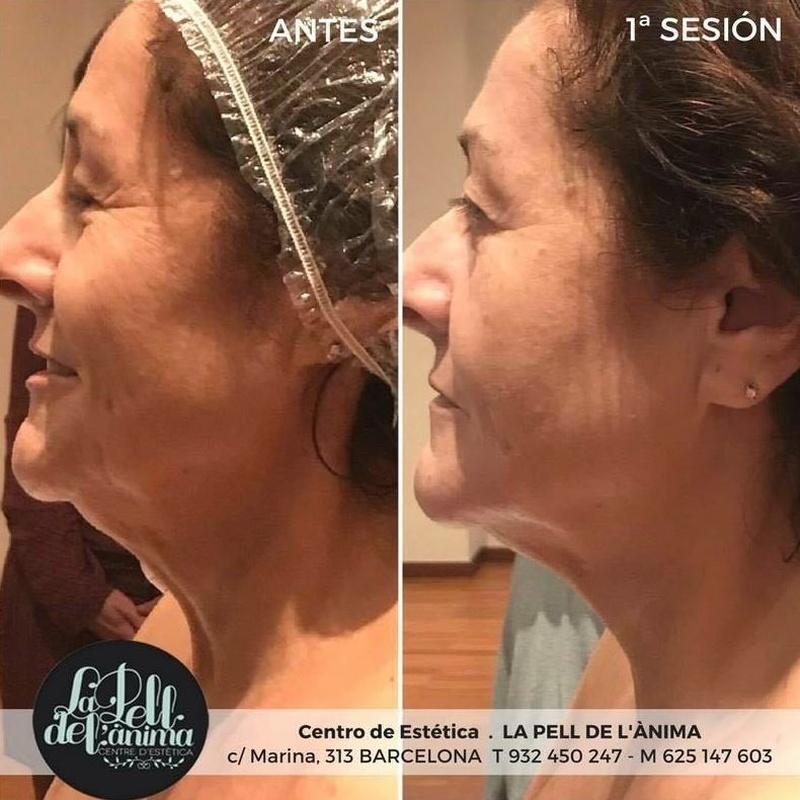 Tratamiento facial Ericson: Tratamientos de La Pell de L'ànima