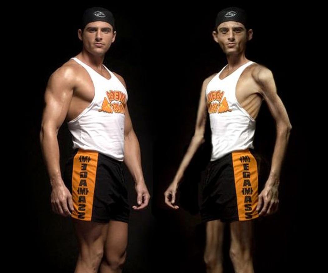 La anorexia, un trastorno que también afecta a hombres