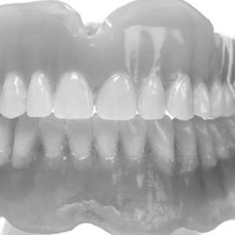Prótesis: Catálogo de Edent Clínica Dental - Dra. Celia Caba