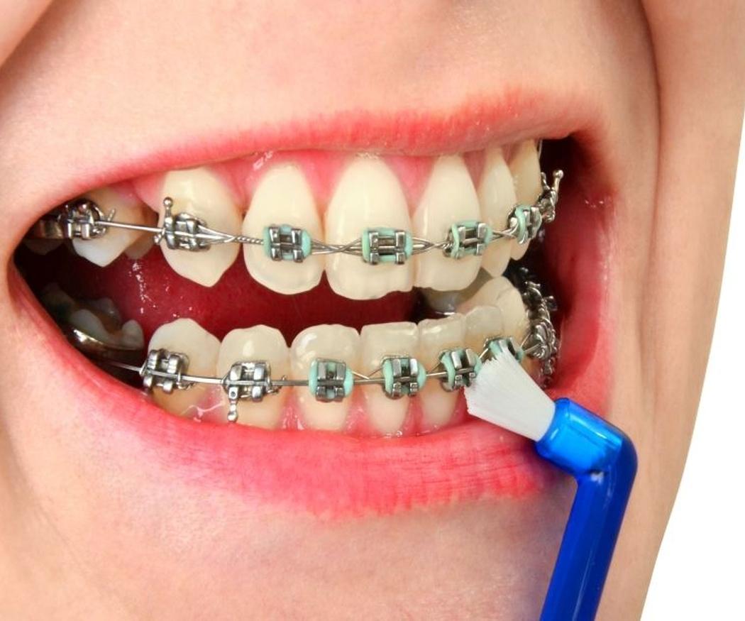 Higiene dental para personas con aparato de ortodoncia