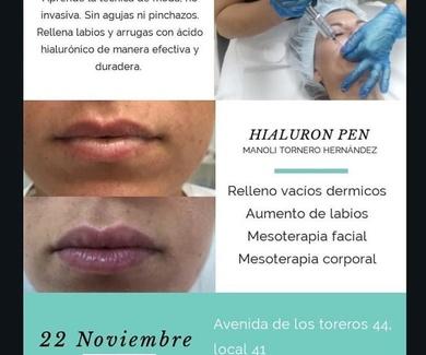 Curso Hyaluron Pen 22 Noviembre 2019