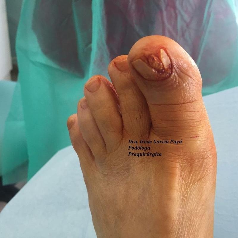 Cirugía podológica: Tratamientos de Clínica Payá Podología