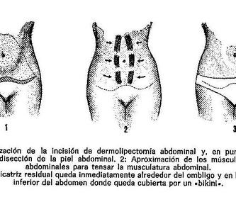 Cirugia de párpados: Blefaroplastia: Intervenciones de Dr. Vila Moriente, J.L. CIRUJANO PLASTICO