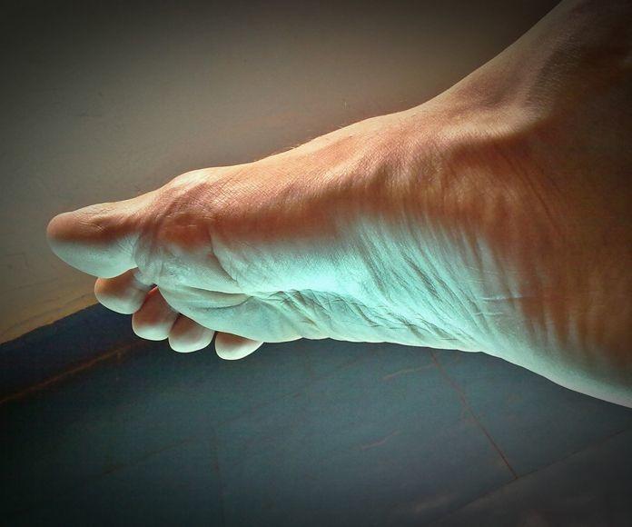 Ortesis de silicona para dedos en garra