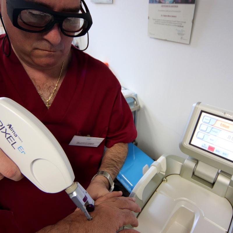 Arrugas y cicatrices: Tratamientos de Fabián Mirón Medicina Estética