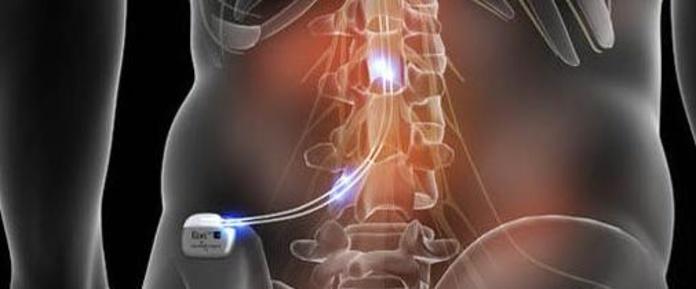 tratamiento y tecnicas Dolor neuroestimulacion Asturias