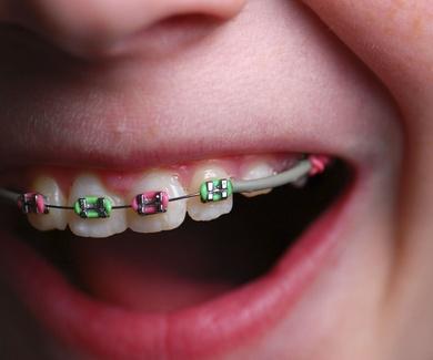 Todo lo que necesitas saber sobre la ortodoncia para niños