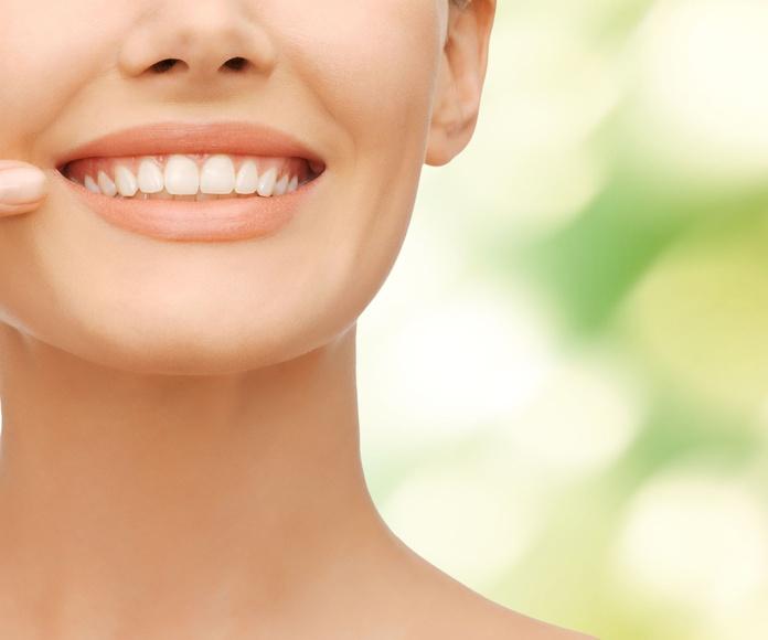 Estética dental: Tratamientos de DentiVita Clínica Dental San Isidro