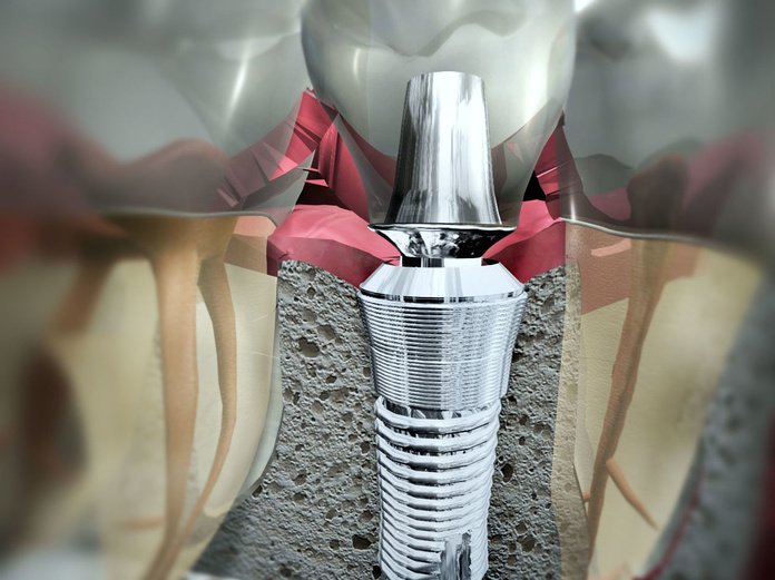 Implantes Dentales. Recupera tu función de una manera segura.