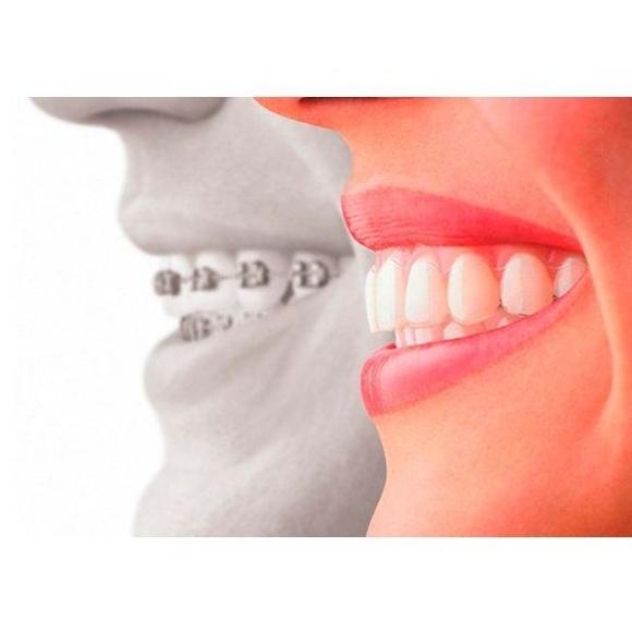 Ortodoncia  : Servicios de Clínica Dental Dra. Belkys Hernández Cabrera
