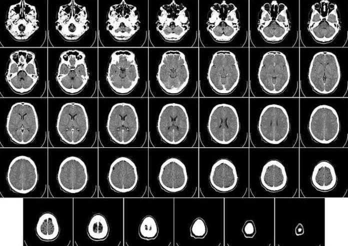 Tomografía computada (TC): Especialidades de Neurología de Lainez Andrés, J.M