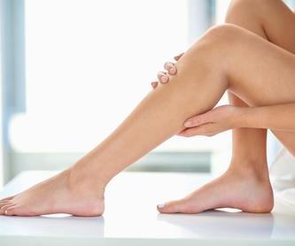 Reducción de marcas y cicatrices: Tratamientos de Fabián Mirón Medicina Estética