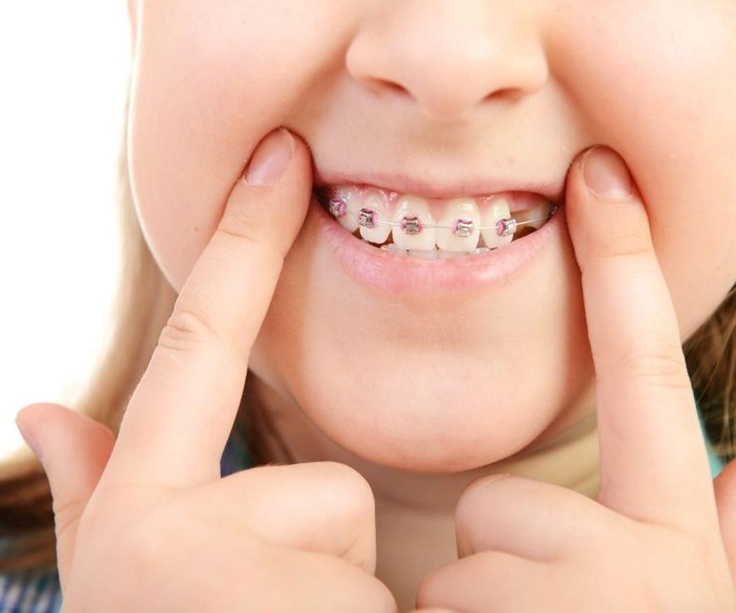 La mejor edad para ponerle ortodoncia a tu hijo
