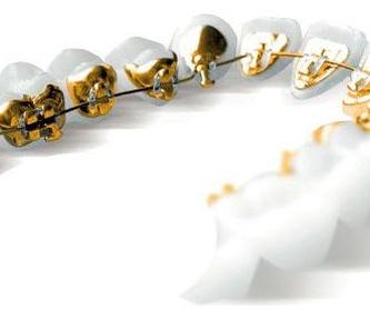 Sistema Damon: Servicios de Clínica Ortodoncia María Dolores Olaizola