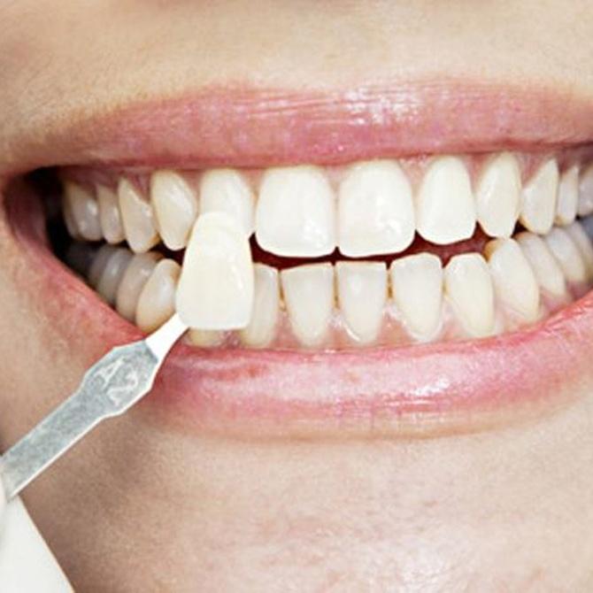 Cuidados para tus dientes