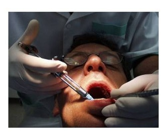 Endodoncias: Tratamientos de Clínica Dental Espartales - José Antonio Narváez