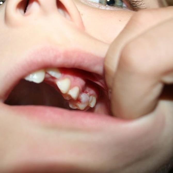 Principales problemas dentales en la infancia