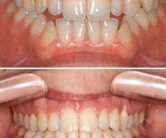 Ortodoncia invisible: Tratamientos de Ortodoncia Carlton