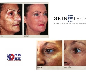 Cirugía facial: Odex Corporación