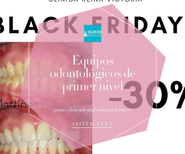 Estética dental en Tetuán Madrid