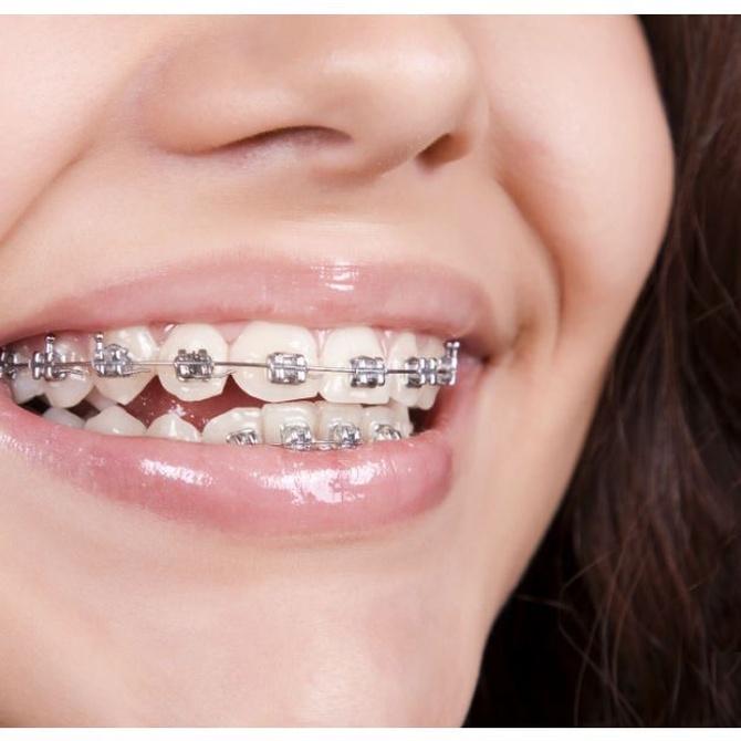 ¿Cuánto tiempo dura un tratamiento de ortodoncia?