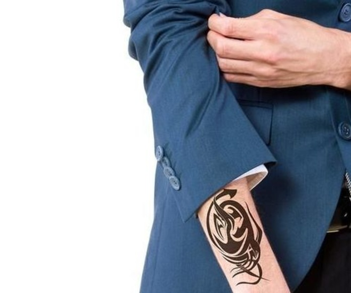Eliminar tatuaje Madrid Laser Avant