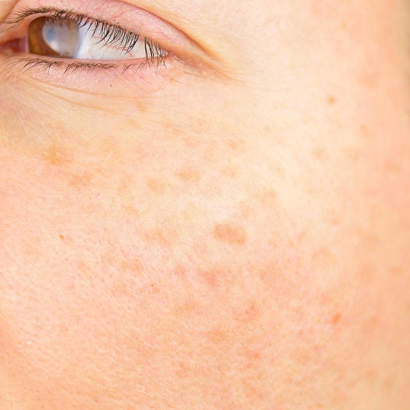 Léntigos: Dermatología y Dermoestética de Dermatología Socorro Fierro