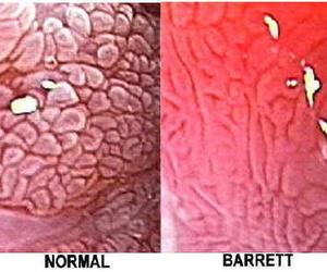 Imagenes de esófago con endoscopia de magnificación