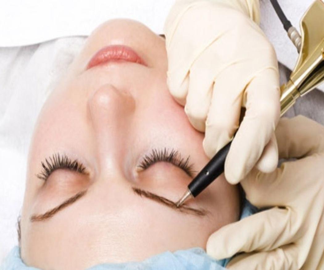 Ventajas de la micropigmentación
