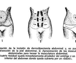 Abdominoplastia: Reparación de la pared abdominal