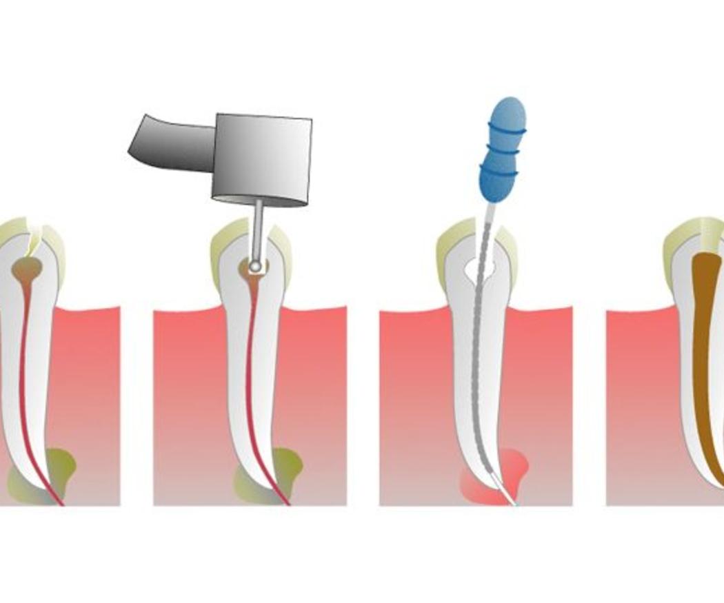 Ventajas de las endodoncias