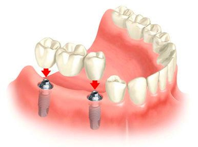 Implantes: Tratamientos de Maite Pérez Corrales
