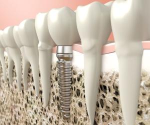 Impantología dental