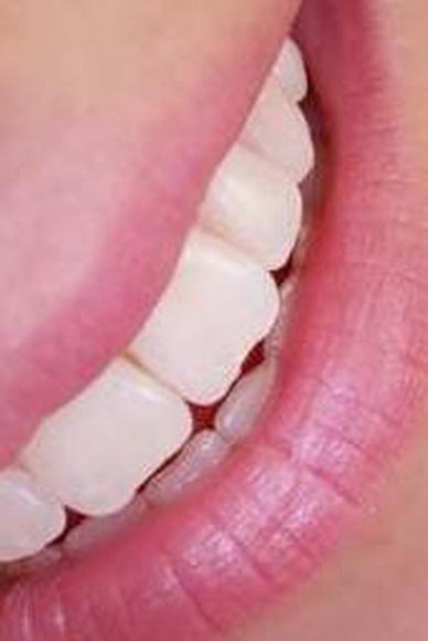 Blanqueamiento dental: Servicios de Clínica Dental El Carmen
