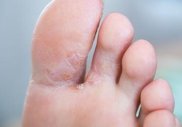 Infecciones por hongos / Candidiasis