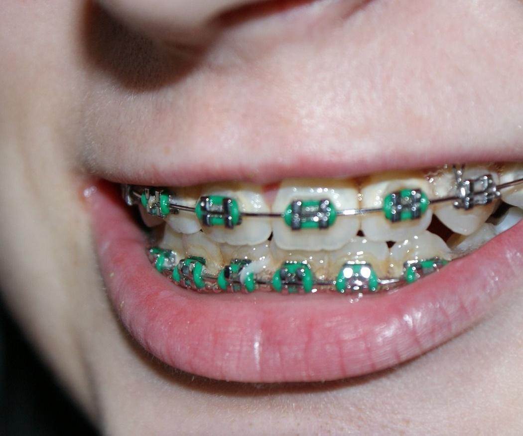 Las ortodoncias infantiles son más efectivas