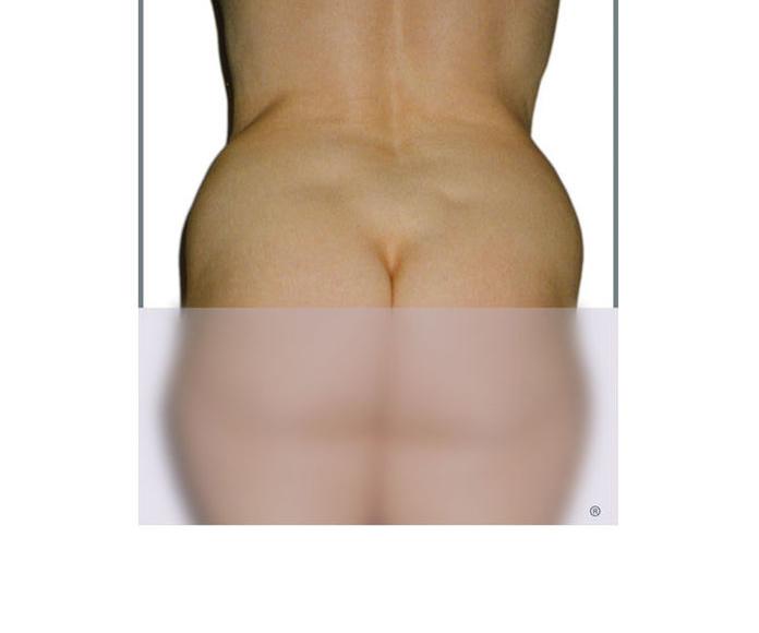 LPG: NUESTROS TRATAMIENTOS de Centro de Estética y Medicina Estética