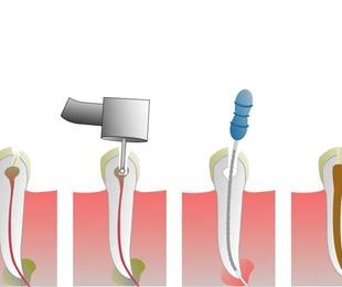 ¿Qué es y por qué hacerse una endodoncia?