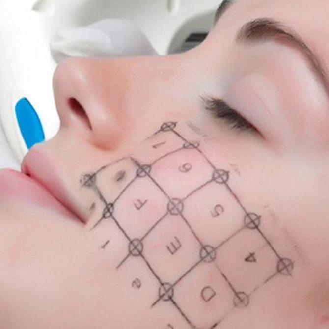 Botox, ventajas e inconvenientes