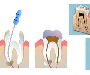 Especialidades : Clínica Dental Dr. Javier Pérez Martínez